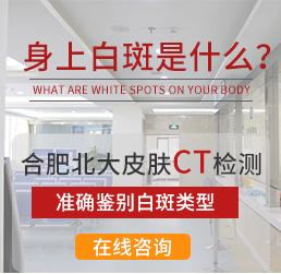 白癜风CT检查